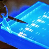 Electrophoresis and Blots